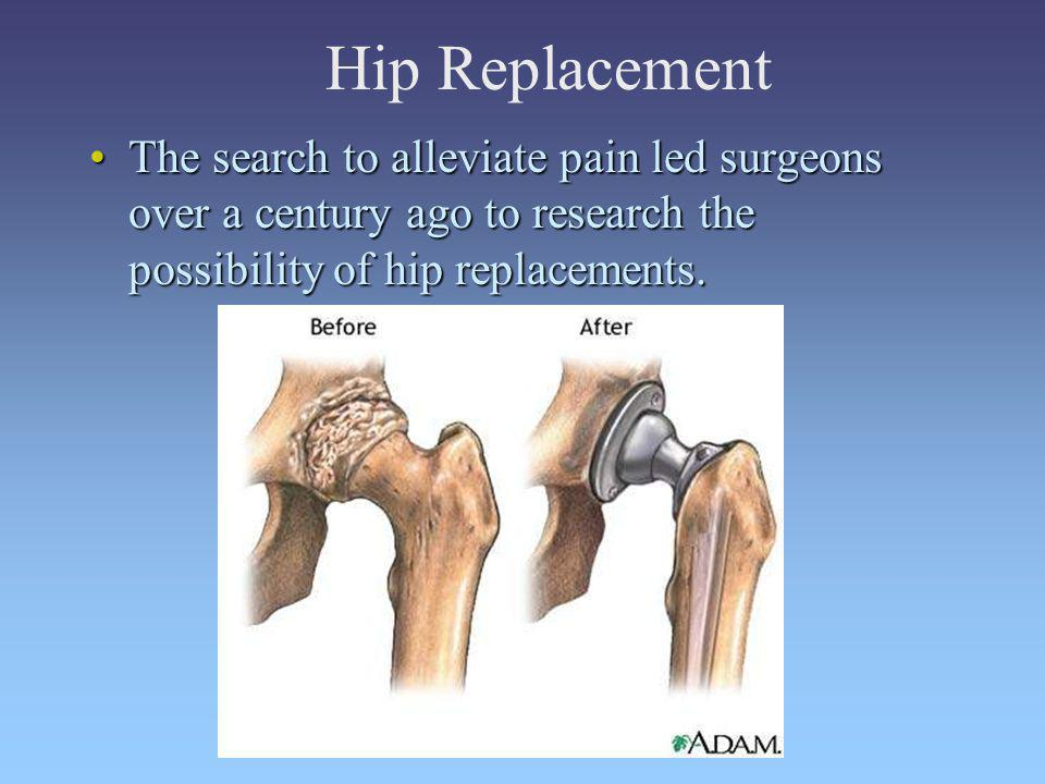Hip Replacement The search to alleviate pain led surgeons over a century ago to research the possibility of hip replacements.The search to alleviate p
