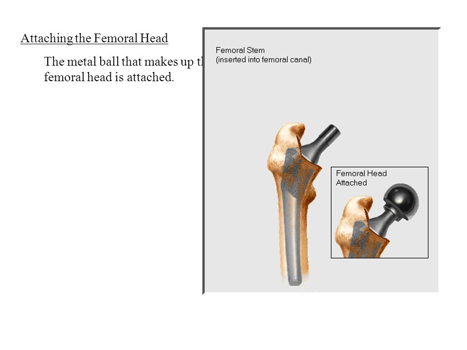 Attaching the Femoral Head The metal ball that makes up the femoral head is attached.