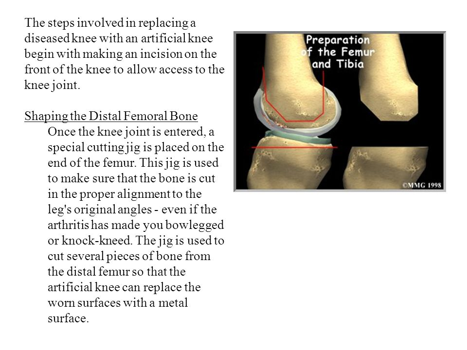 The steps involved in replacing a diseased knee with an artificial knee begin with making an incision on the front of the knee to allow access to the