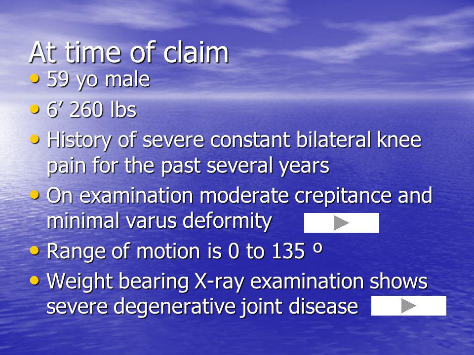 At time of claim 59 yo male 59 yo male 6 260 lbs 6 260 lbs History of severe constant bilateral knee pain for the past several years History of severe constant bilateral knee pain for the past several years On examination moderate crepitance and minimal varus deformity On examination moderate crepitance and minimal varus deformity Range of motion is 0 to 135 º Range of motion is 0 to 135 º Weight bearing X-ray examination shows severe degenerative joint disease Weight bearing X-ray examination shows severe degenerative joint disease