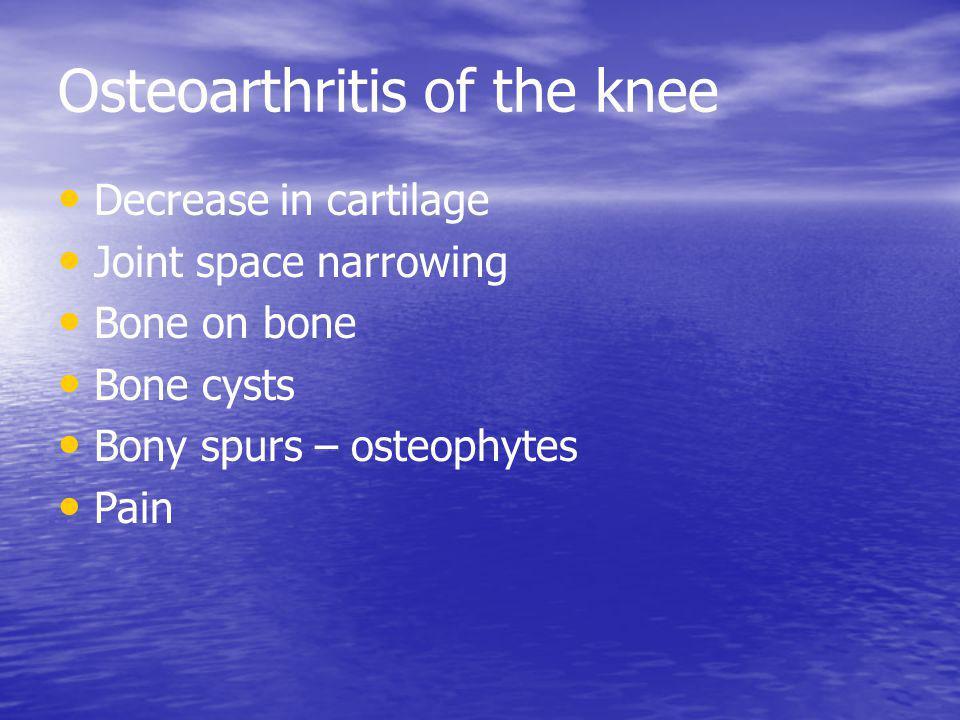 Osteoarthritis of the knee Decrease in cartilage Joint space narrowing Bone on bone Bone cysts Bony spurs – osteophytes Pain