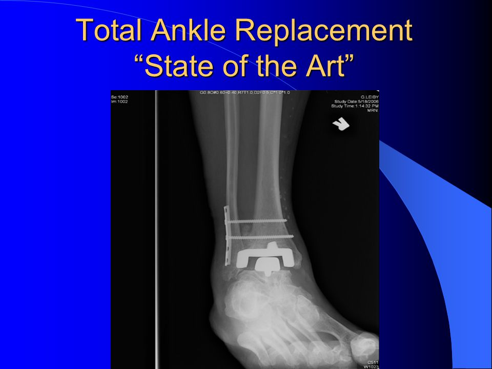 Total Ankle ReplacementState of the Art