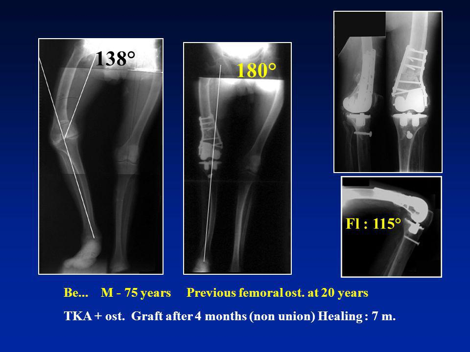 Be... M - 75 years Previous femoral ost. at 20 years TKA + ost. Graft after 4 months (non union) Healing : 7 m. 138° Fl : 115° 180°