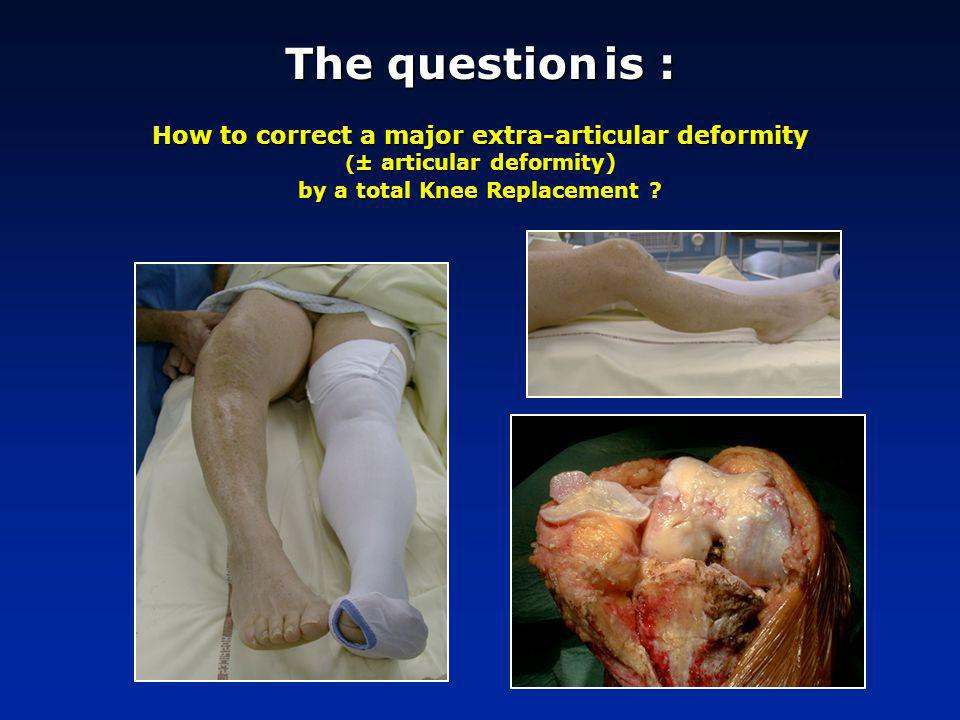 Typical cases are represented by tibial deformities (following osteotomies or fractures) Valgus Varus Profile