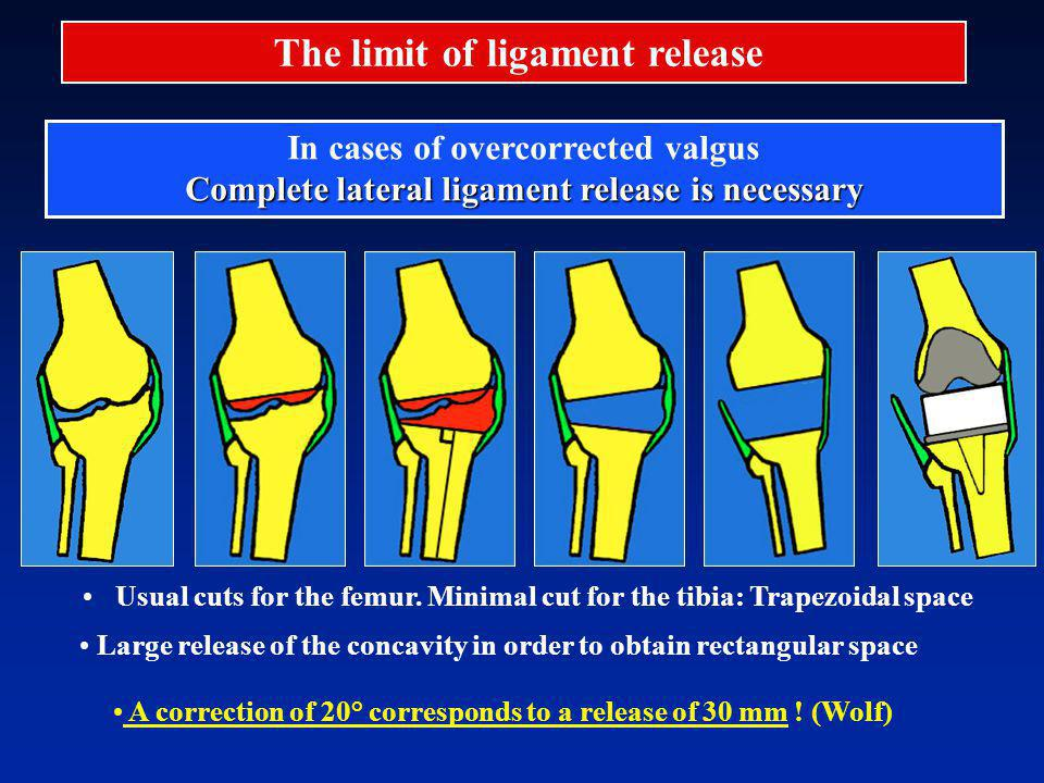 Usual cuts for the femur. Minimal cut for the tibia: Trapezoidal space In cases of overcorrected valgus Complete lateral ligament release is necessary
