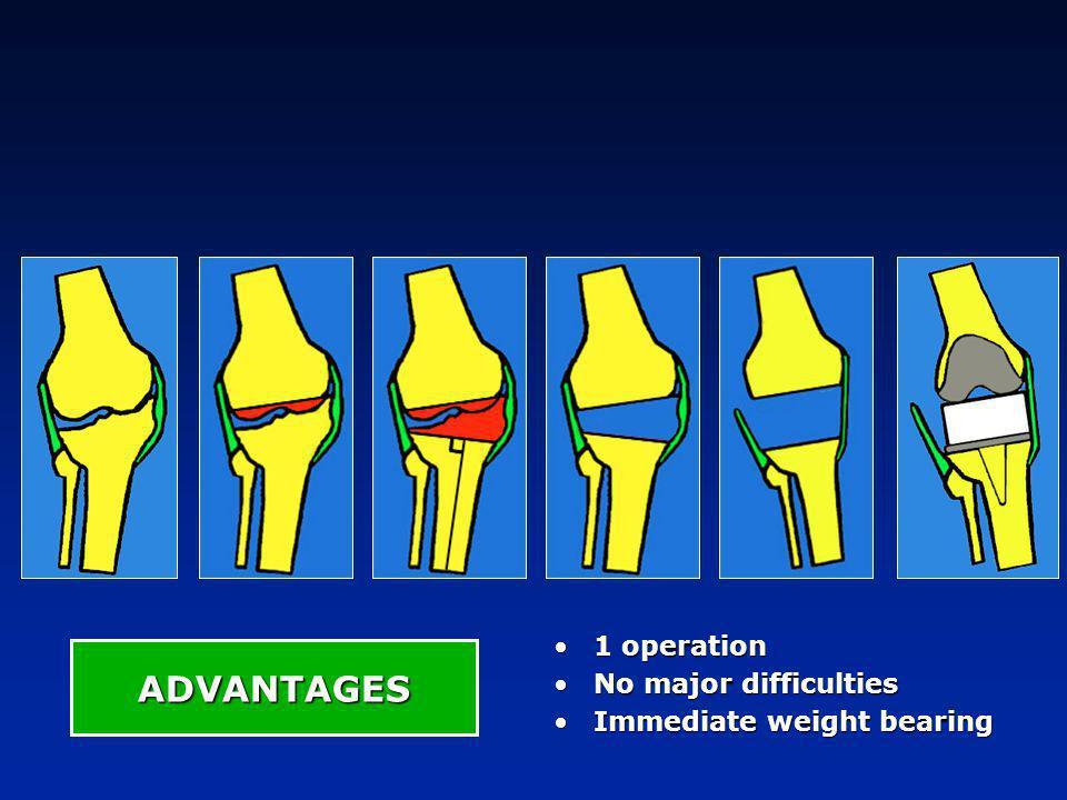 INDICATIONS Wear + laxity DEFORMITY Extra-articular deformity + =