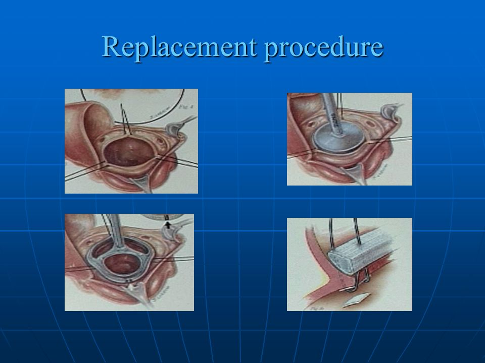 Replacement procedure