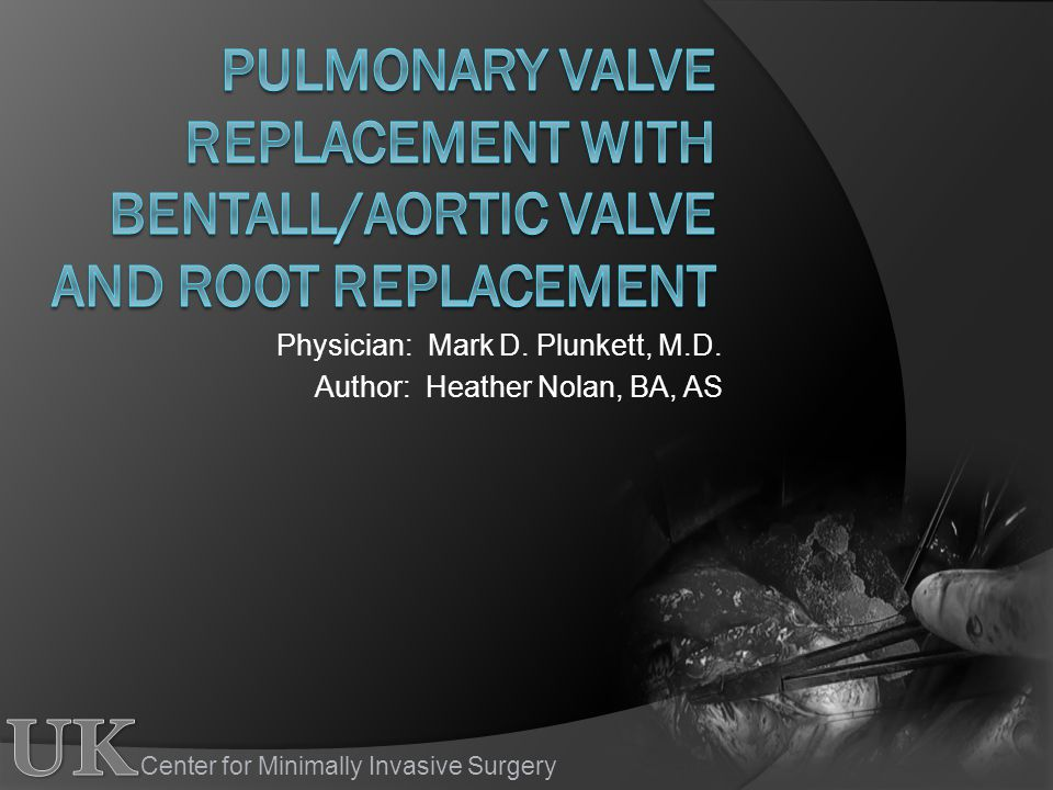 Center for Minimally Invasive Surgery Physician: Mark D.