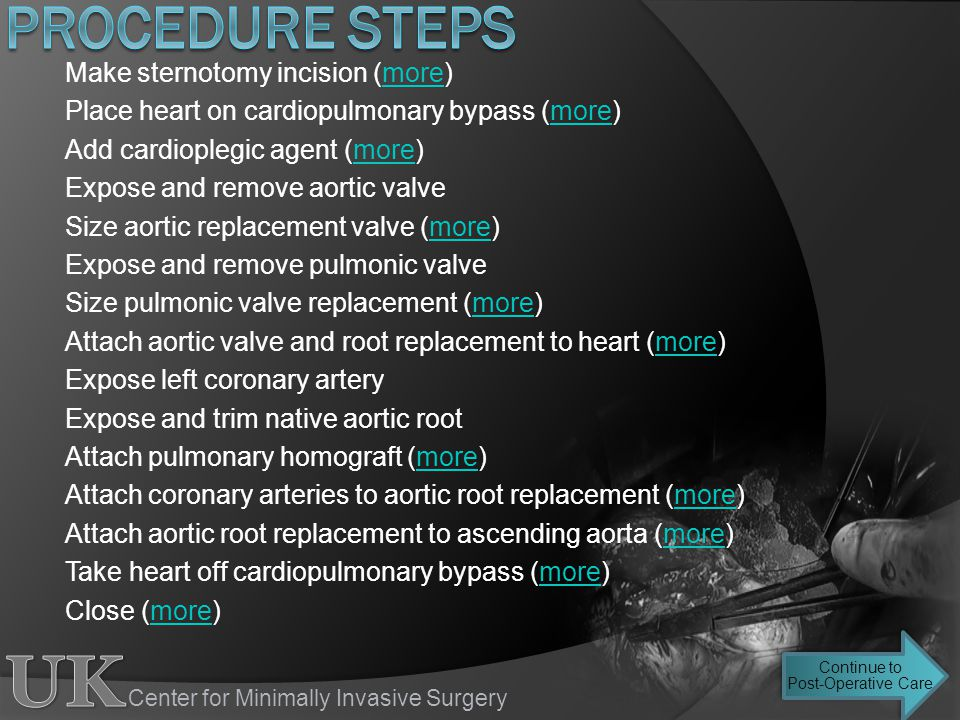 Center for Minimally Invasive Surgery Make sternotomy incision (more)more Place heart on cardiopulmonary bypass (more)more Add cardioplegic agent (mor