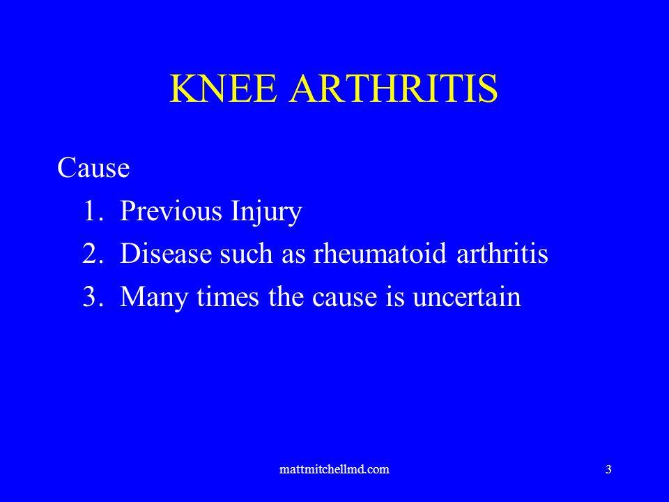 mattmitchellmd.com4 Symptoms 1.Progressive pain with activities 2.