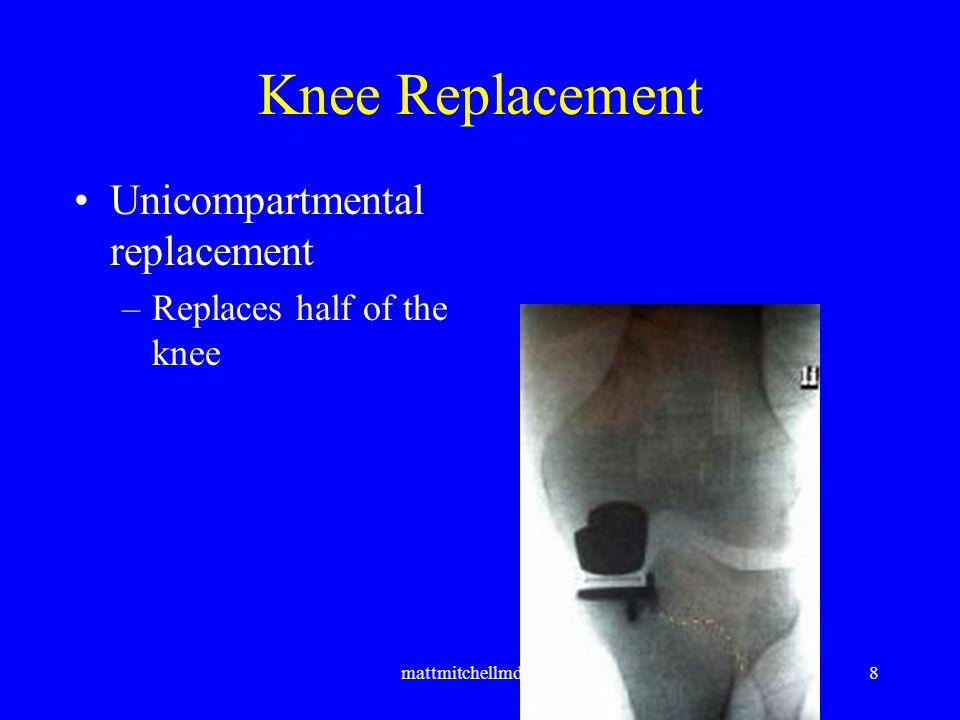 mattmitchellmd.com9 Knee Replacement –Total Knee Replacement Replaces all of the knee