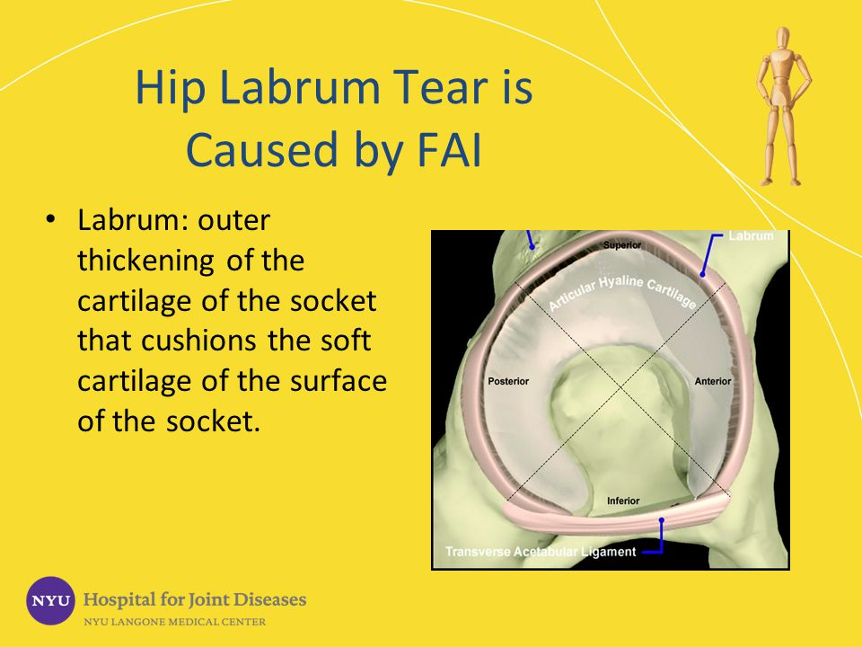 Hip Labrum Tear is Caused by FAI Labrum: outer thickening of the cartilage of the socket that cushions the soft cartilage of the surface of the socket