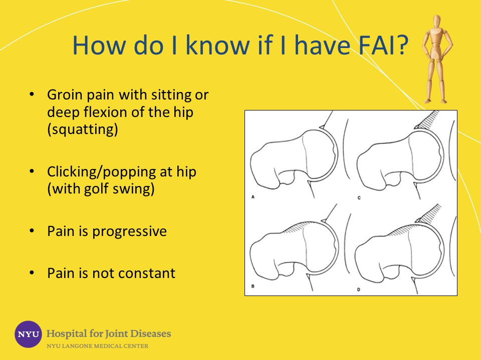 How do I know if I have FAI? Groin pain with sitting or deep flexion of the hip (squatting) Clicking/popping at hip (with golf swing) Pain is progress