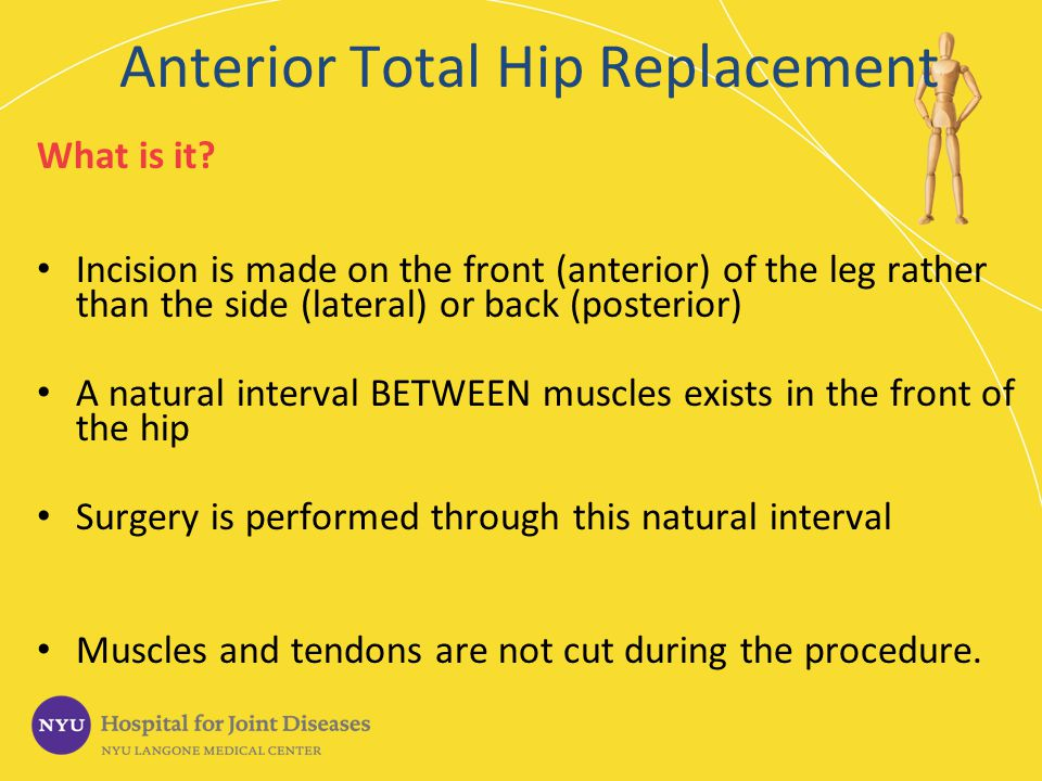 Anterior Total Hip Replacement What is it? Incision is made on the front (anterior) of the leg rather than the side (lateral) or back (posterior) A na