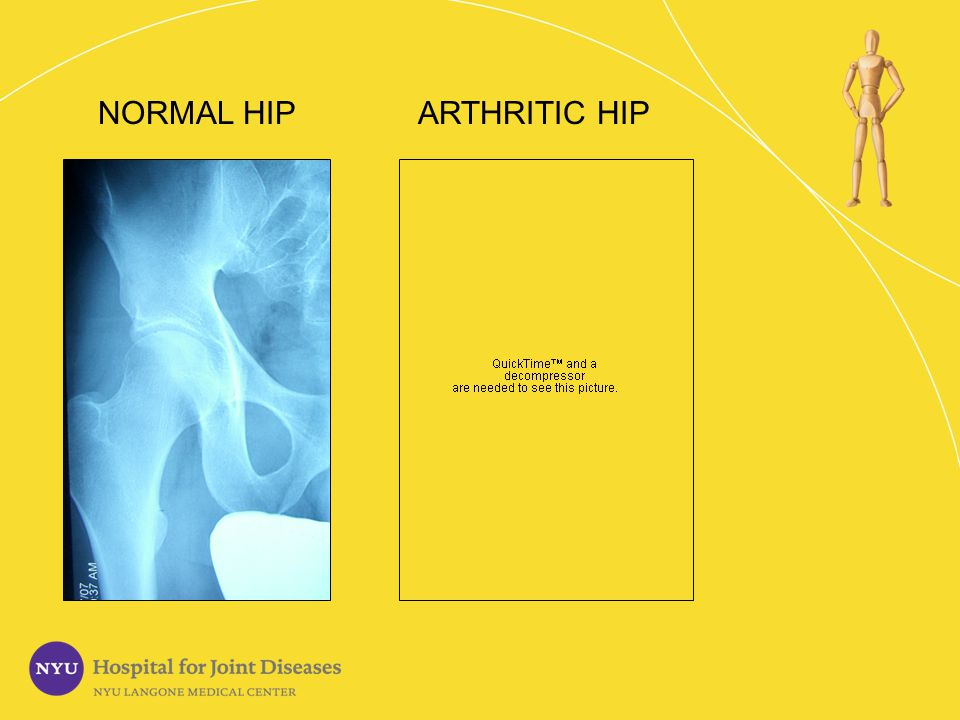 Symptoms of Arthritis Do you sometimes limp.Does your hip feel stiff.