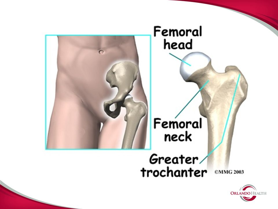 SUMMARY WIDE SPECTRUM OF HIP PROBLEMS THAT ARE BEING TREATED WITH EXCITING NEW HIP SURGERY TECHNIQUES AND TECHNOLOGIES SEEK OPINIONS FROM CENTERS WITH EXPERTISE IN ALL THESE OPTIONS CAUTIOUSLY ADOPT NEW TECHNOLOGIES BE AN EDUCATED CONSUMER BEWARE FADS