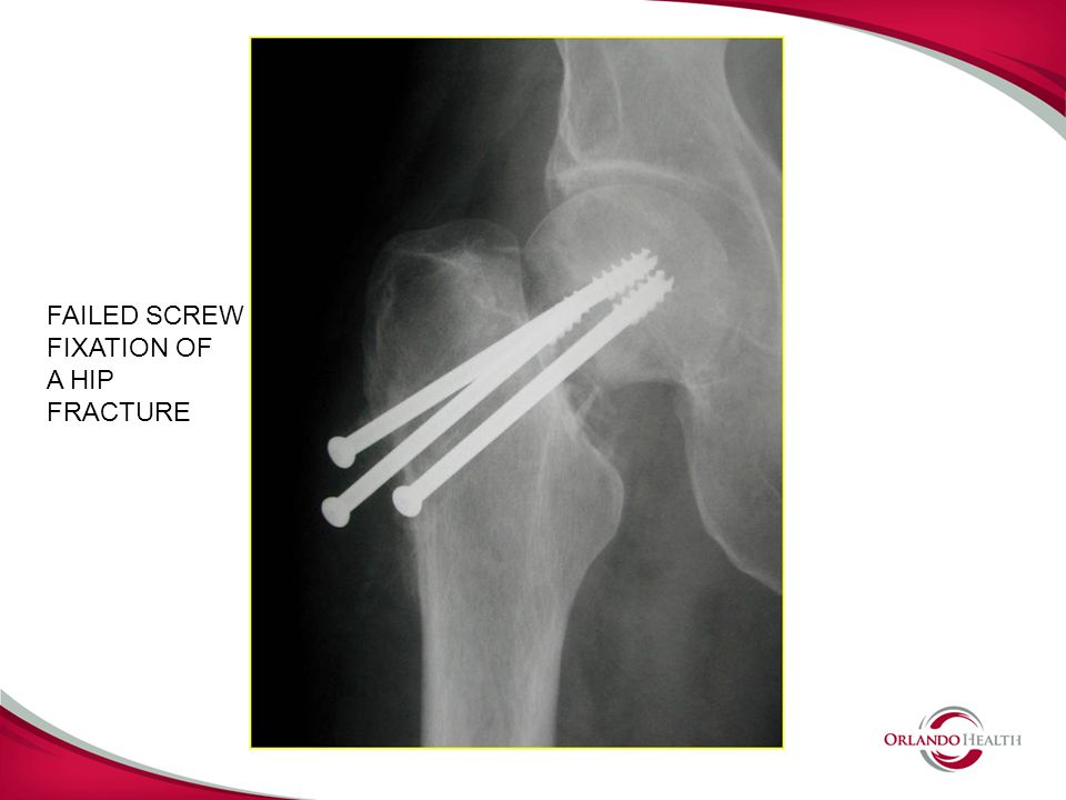 FAILED SCREW FIXATION OF A HIP FRACTURE