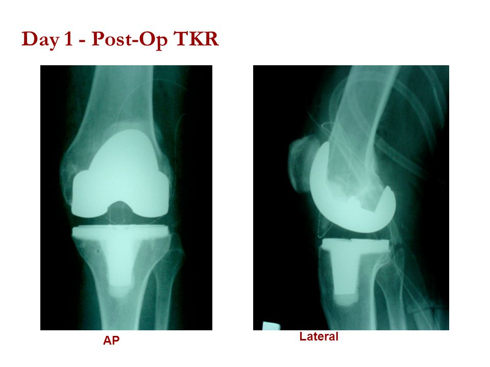 Day 1 - Post-Op TKR AP Lateral
