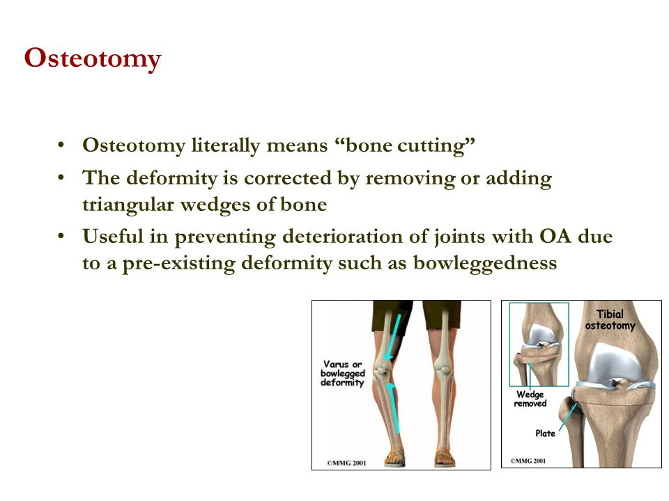 Osteotomy Osteotomy literally means bone cutting The deformity is corrected by removing or adding triangular wedges of bone Useful in preventing deter
