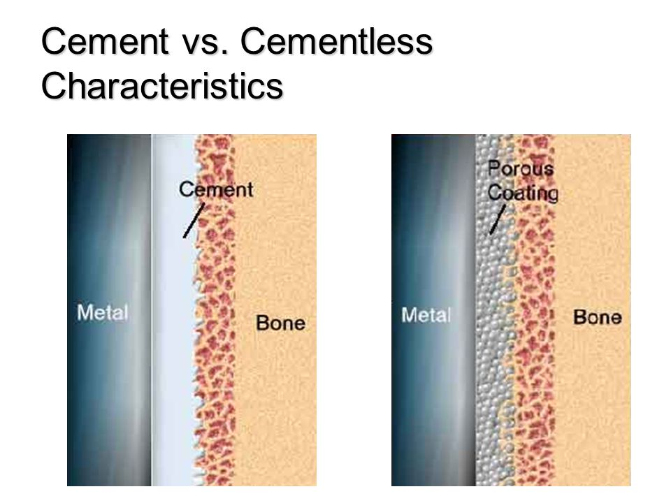 Cement vs. Cementless Characteristics
