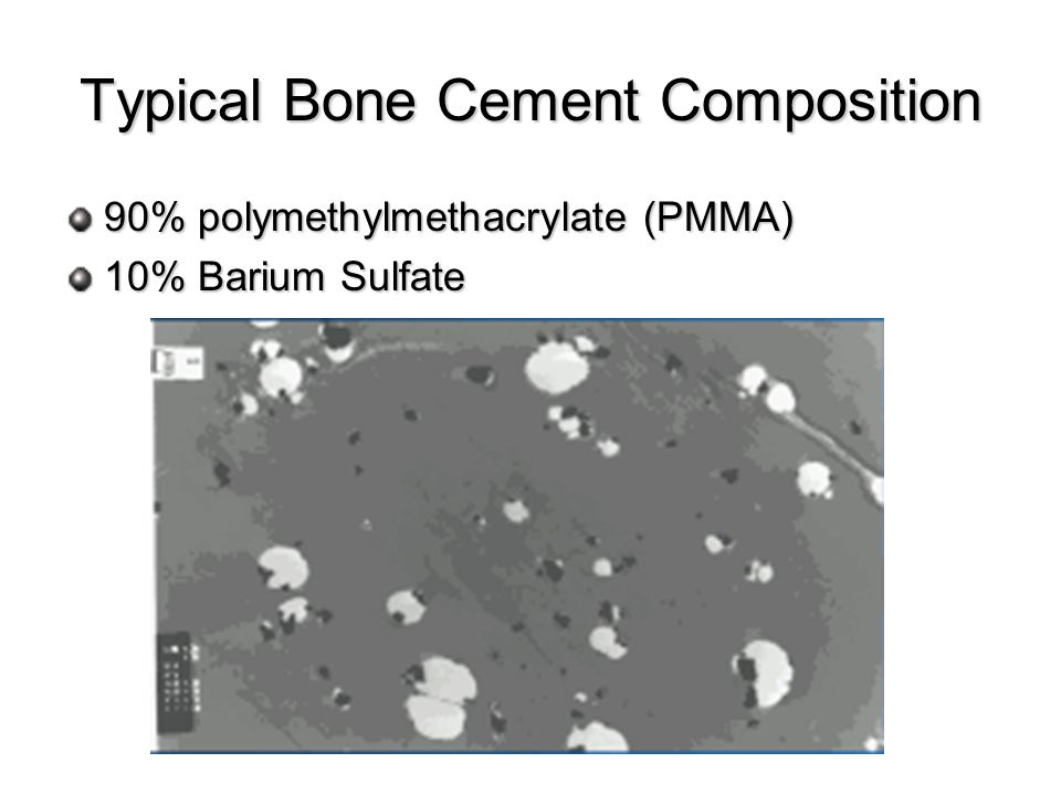 Typical Bone Cement Composition 90% polymethylmethacrylate (PMMA) 10% Barium Sulfate