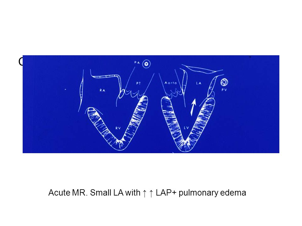 Acute MR. Small LA with LAP+ pulmonary edema