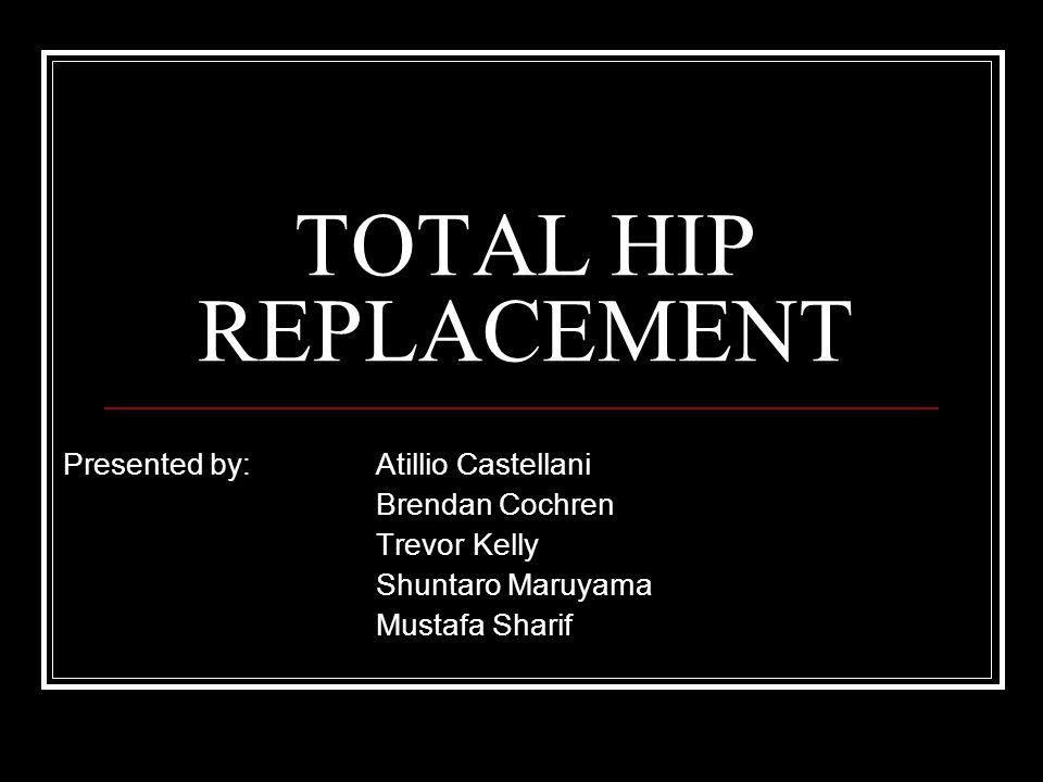 TOTAL HIP REPLACEMENT Presented by: Atillio Castellani Brendan Cochren Trevor Kelly Shuntaro Maruyama Mustafa Sharif