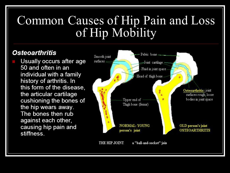 Common Causes of Hip Pain and Loss of Hip Mobility Osteoarthritis Usually occurs after age 50 and often in an individual with a family history of arth