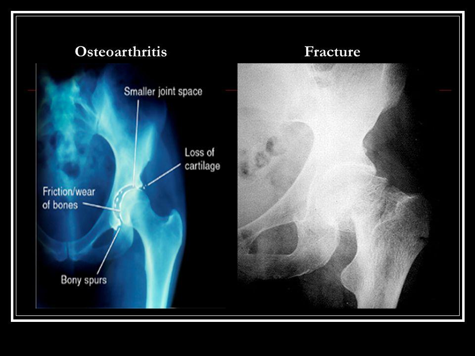 OsteoarthritisFracture