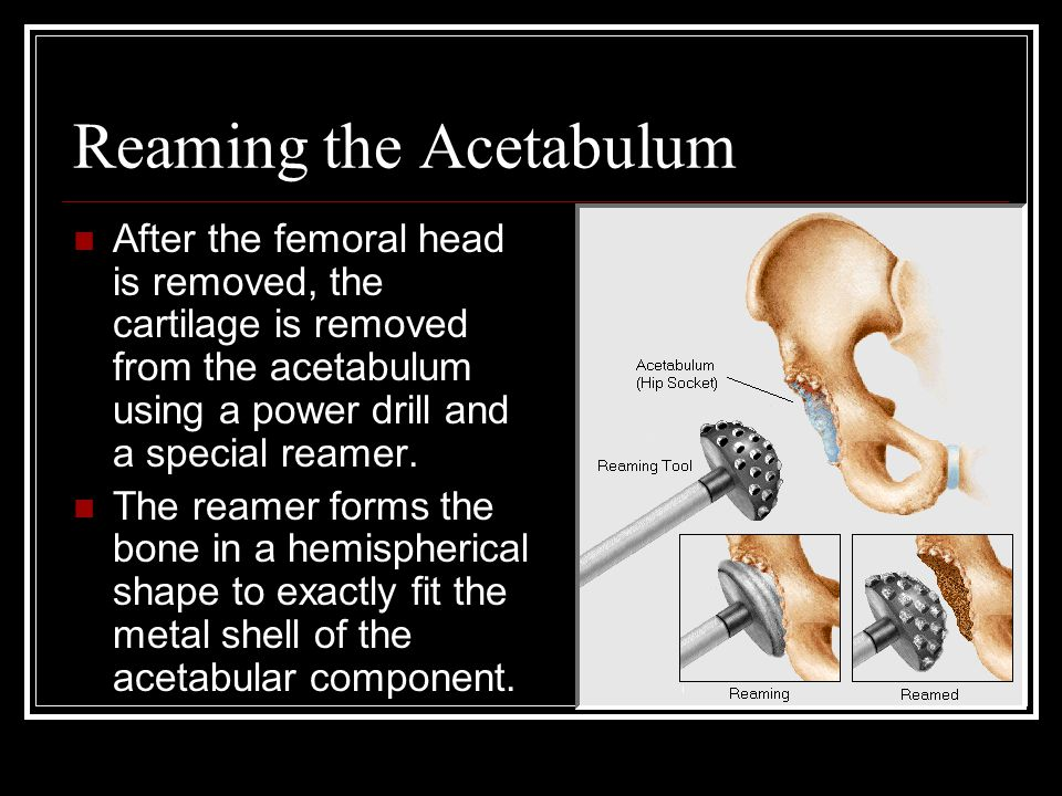 Reaming the Acetabulum After the femoral head is removed, the cartilage is removed from the acetabulum using a power drill and a special reamer. The r