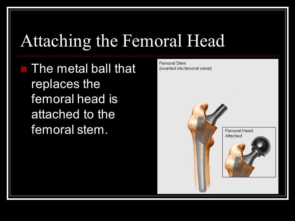 Attaching the Femoral Head The metal ball that replaces the femoral head is attached to the femoral stem.