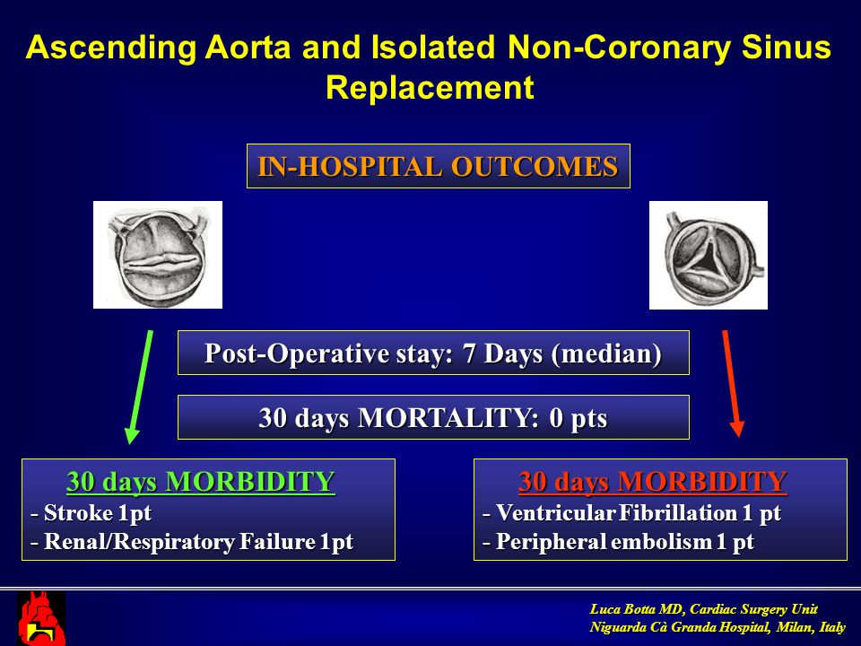 Luca Botta MD, Cardiac Surgery Unit Niguarda Cà Granda Hospital, Milan, Italy IN-HOSPITAL OUTCOMES Ascending Aorta and Isolated Non-Coronary Sinus Replacement Post-Operative stay: 7 Days (median) 30 days MORTALITY: 0 pts 30 days MORBIDITY 30 days MORBIDITY - Stroke 1pt - Renal/Respiratory Failure 1pt 30 days MORBIDITY 30 days MORBIDITY - Ventricular Fibrillation 1 pt - Peripheral embolism 1 pt