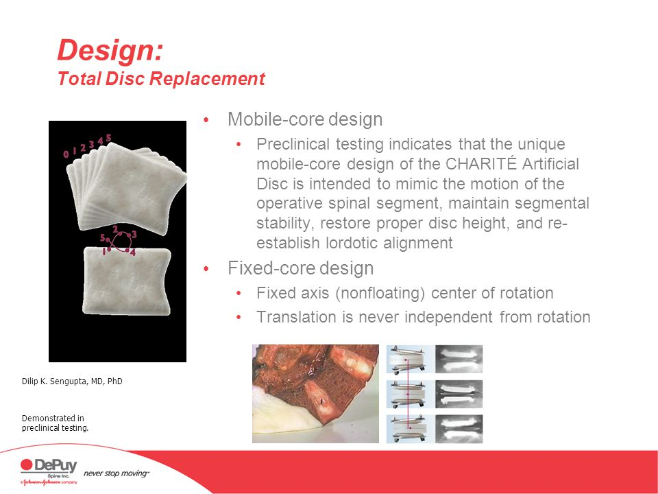 IDE Trial: CHARITÉ Artificial Disc IDE study results published in July 2005 Multicenter, prospective, randomized, controlled study to compare 2 different surgical treatments for lumbar degenerative disc disease (DDD) A prospective, randomized, multicenter Food and Drug Administration investigational device exemptions study of lumbar total disc replacement with the CHARITÉ Artificial Disc versus lumbar fusion: part I: evaluation of clinical outcomes Scott Blumenthal MD, Paul C.