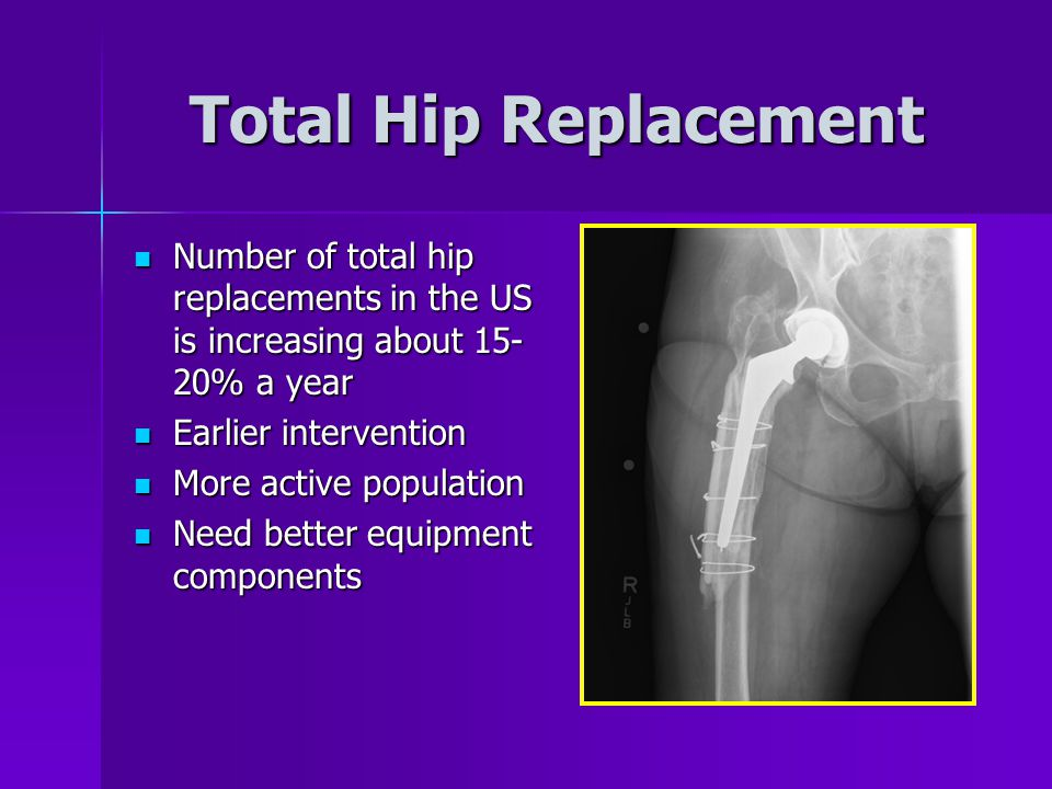 Total Hip Replacement Number of total hip replacements in the US is increasing about 15- 20% a year Number of total hip replacements in the US is increasing about 15- 20% a year Earlier intervention Earlier intervention More active population More active population Need better equipment components Need better equipment components