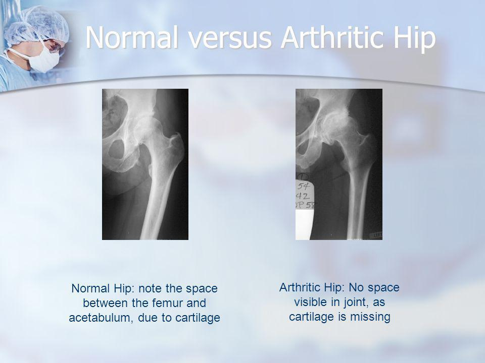 Normal versus Arthritic Hip Normal Hip: note the space between the femur and acetabulum, due to cartilage Arthritic Hip: No space visible in joint, as