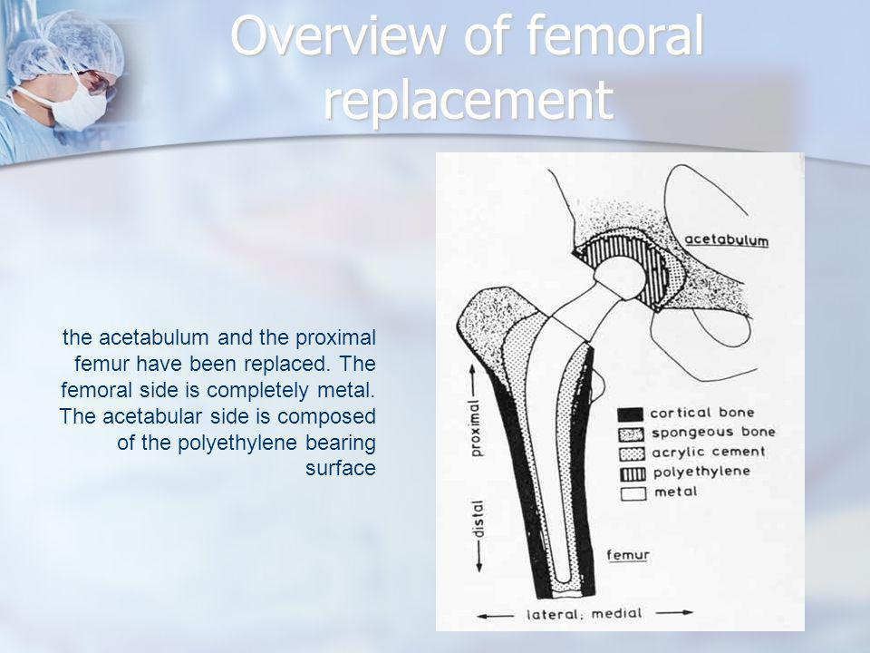 the acetabulum and the proximal femur have been replaced. The femoral side is completely metal. The acetabular side is composed of the polyethylene be