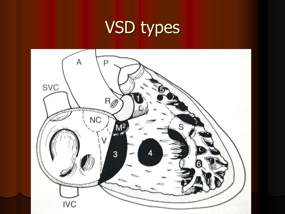 VSD types