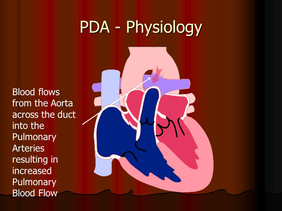 PDA - Physiology Blood flows from the Aorta across the duct into the Pulmonary Arteries resulting in increased Pulmonary Blood Flow