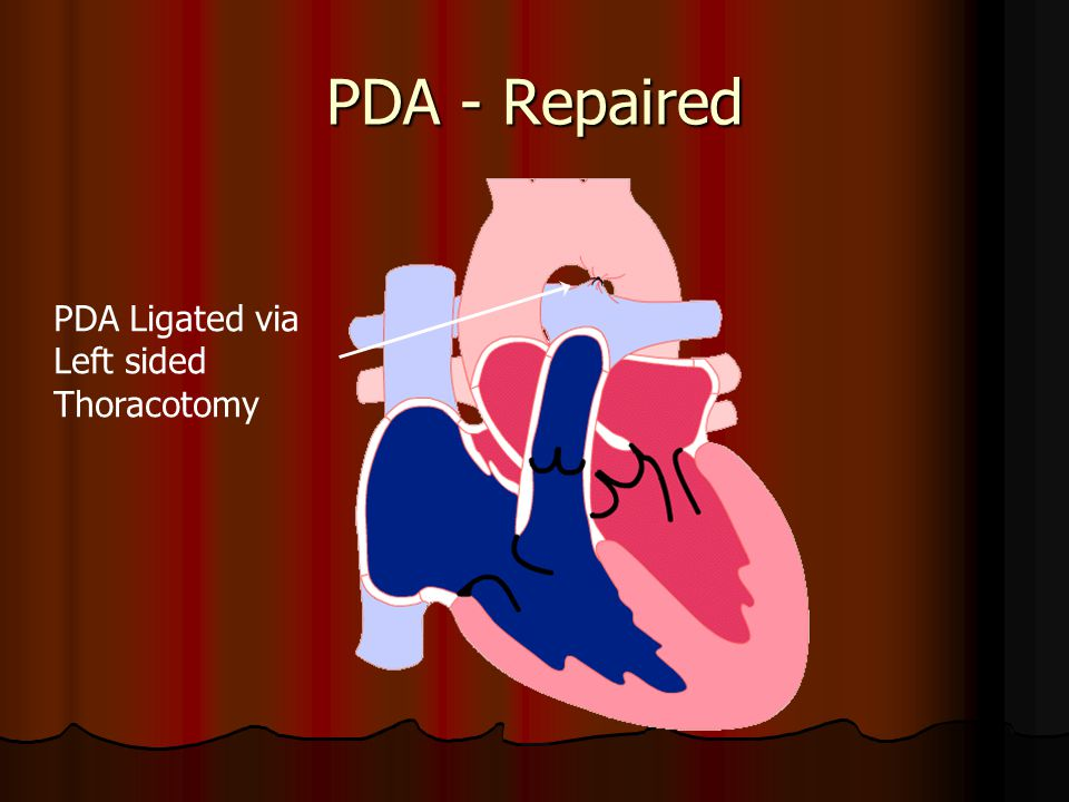 PDA - Repaired PDA Ligated via Left sided Thoracotomy