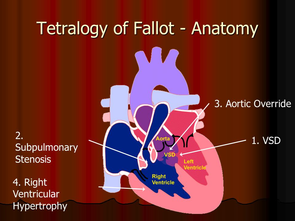 Tetralogy of Fallot - Anatomy 1. VSD 2. Subpulmonary Stenosis 3. Aortic Override 4. Right Ventricular Hypertrophy