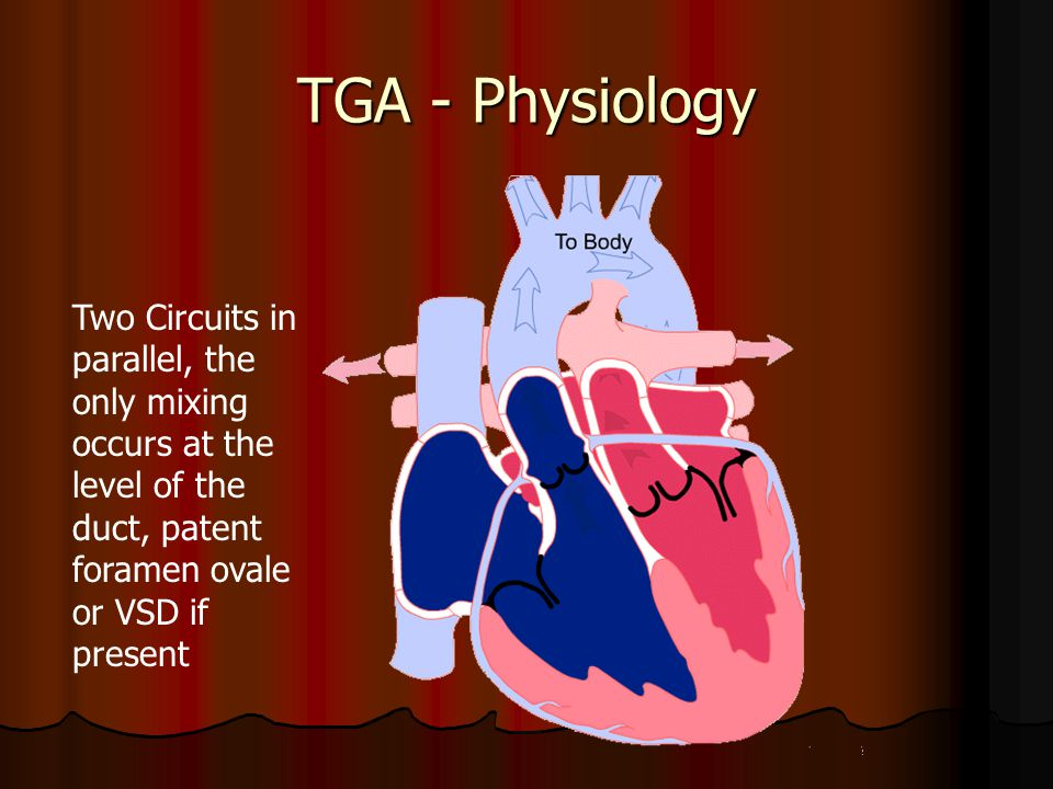 TGA - Physiology Two Circuits in parallel, the only mixing occurs at the level of the duct, patent foramen ovale or VSD if present