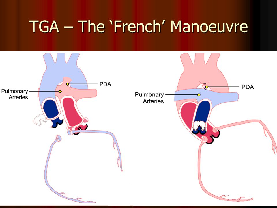 TGA – The French Manoeuvre