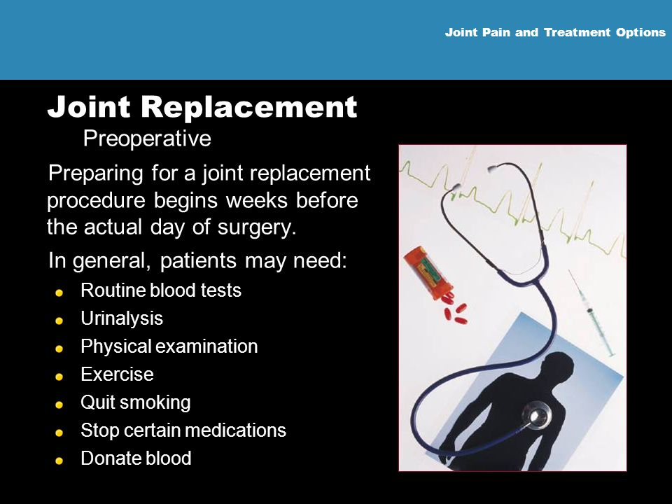 Joint Pain and Treatment Options Joint Replacement Preparing for a joint replacement procedure begins weeks before the actual day of surgery. In gener