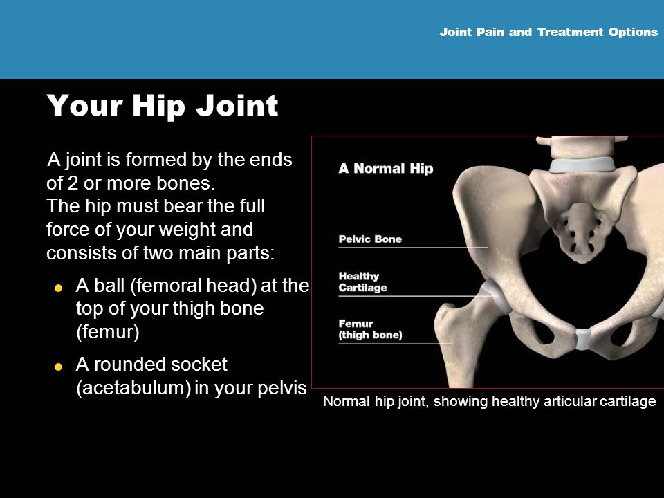 Joint Pain and Treatment Options Your Hip Joint A joint is formed by the ends of 2 or more bones. The hip must bear the full force of your weight and