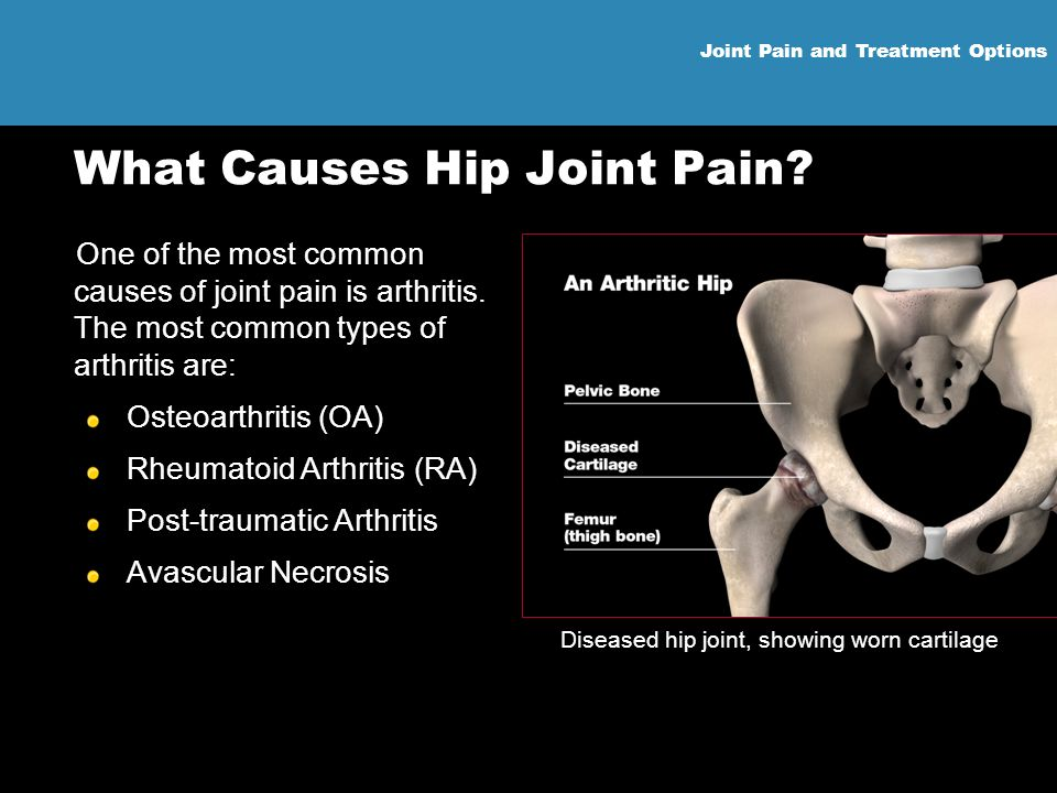 Joint Pain and Treatment Options What Causes Hip Joint Pain? One of the most common causes of joint pain is arthritis. The most common types of arthri