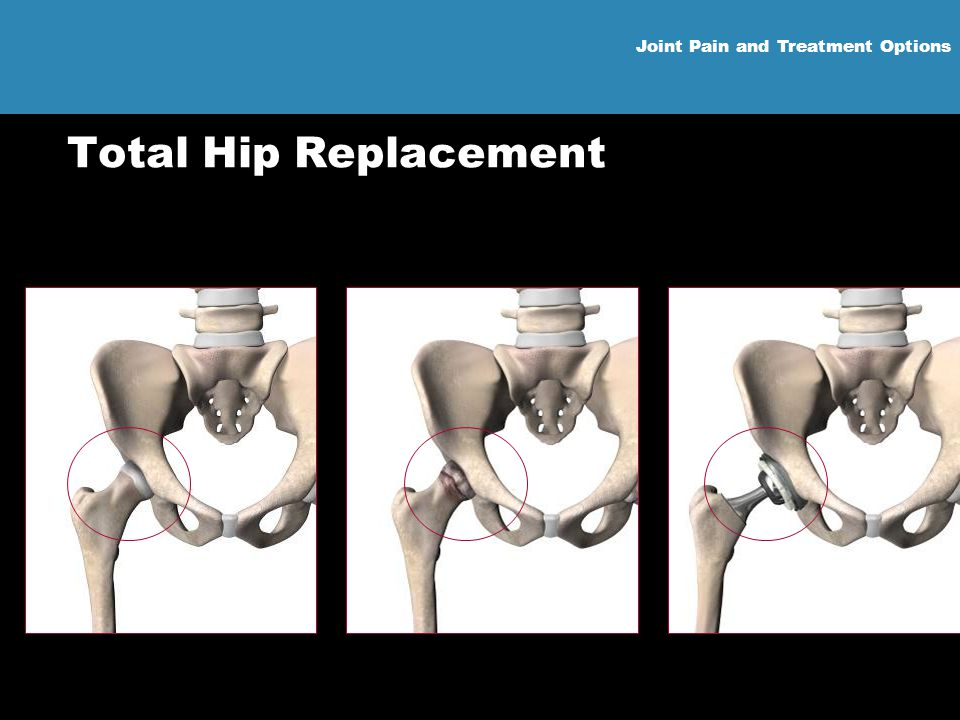 Joint Pain and Treatment Options Total Hip Replacement