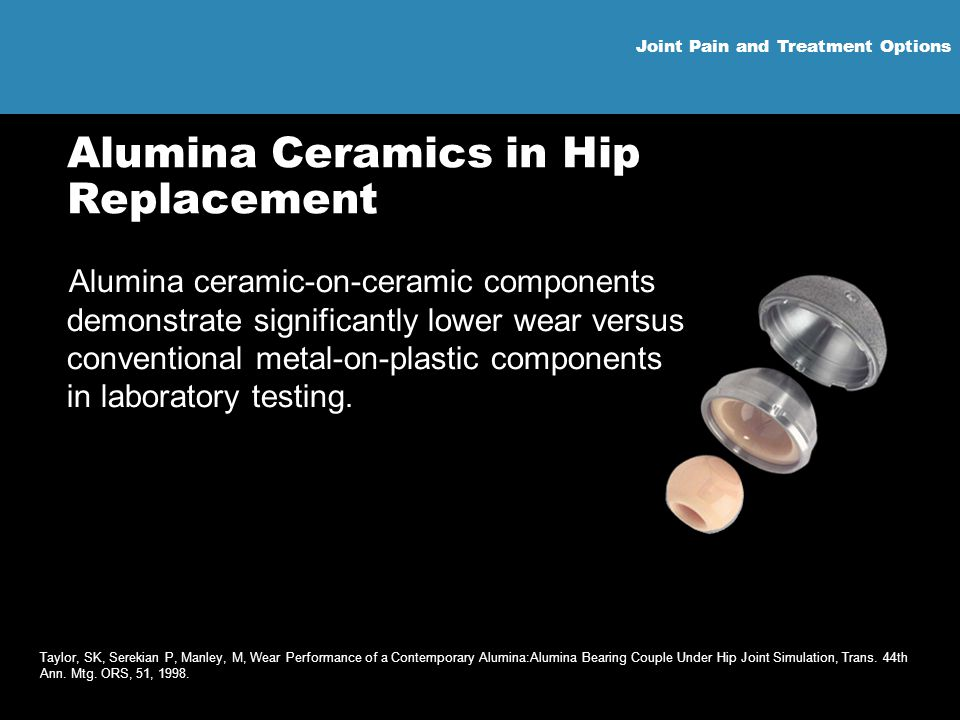 Joint Pain and Treatment Options Alumina Ceramics in Hip Replacement Alumina ceramic-on-ceramic components demonstrate significantly lower wear versus