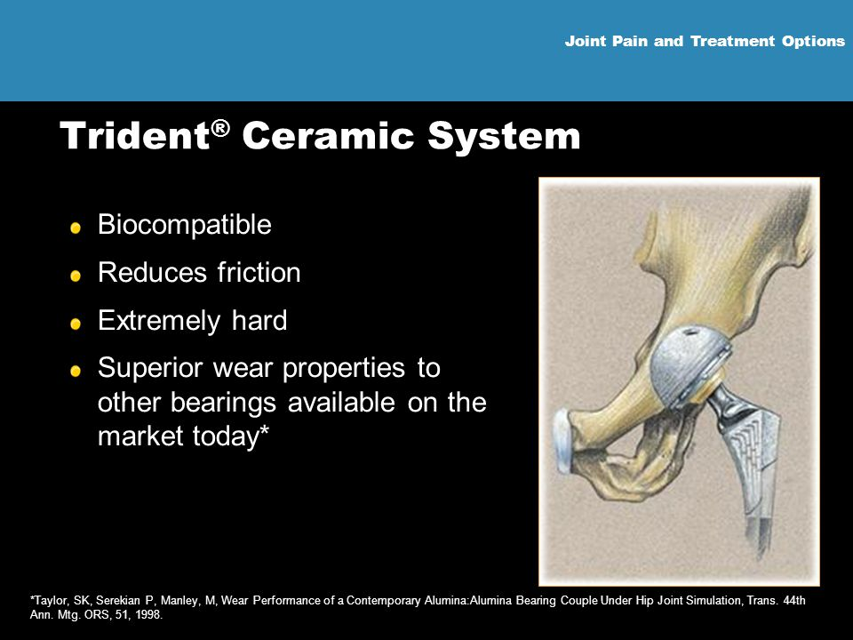 Joint Pain and Treatment Options Trident ® Ceramic System Biocompatible Reduces friction Extremely hard Superior wear properties to other bearings ava