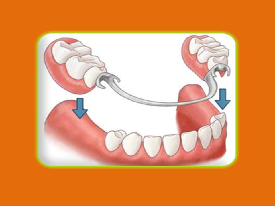 Clasp prosthesis with klammers is made to teeth, thats why is fixed the best way on it, and thanks to elastic, it doesnt spoil enamel.