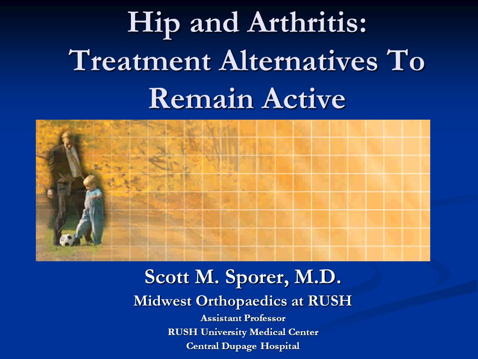 Hip and Arthritis: Treatment Alternatives To Remain Active Scott M.